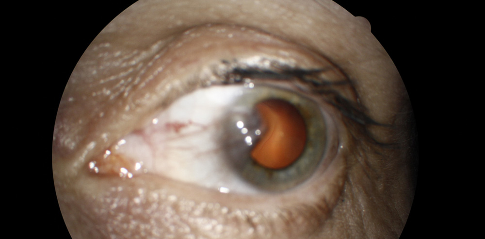 Right-PTERYGIUM