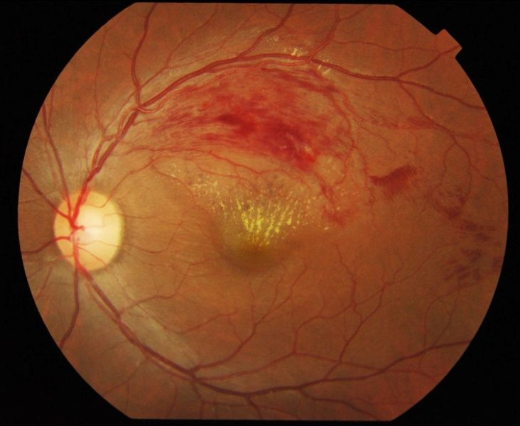 Branch_retinal_vein_occlusion