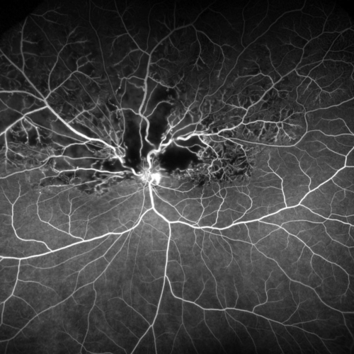 hemi-retinal vein occlusions (HRVO) are variants of central retinal vein occlusion (CRVO)